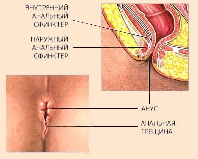 Лечение анальной трещины в Харькове