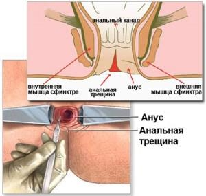 Лечение анальной трещины в Киеве и Одессе