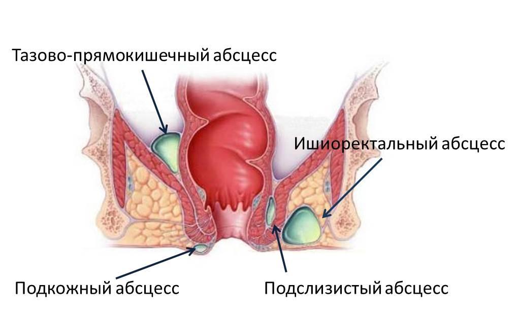 Свищ анального отверстия лечение
