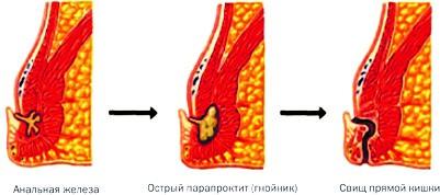 Парапроктит, лечение в Киеве и Одессе