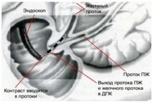 Диагностика ЖКБ Киев