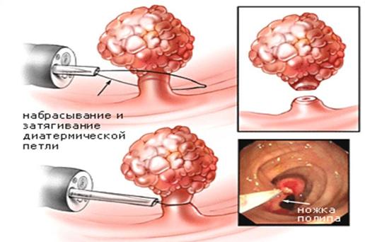 Лечение кровообращения геморроя