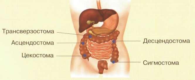 Классификация кишечных стом