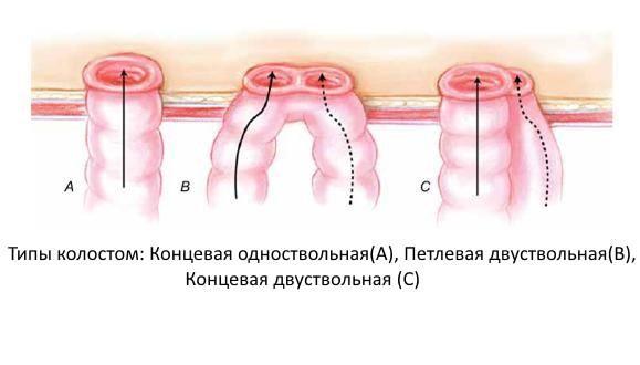 Кишечные стомы