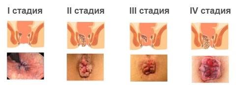 Геморрой лечение мазью флеминга