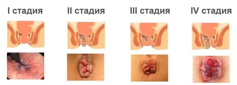 Аппарат Дарсонваль КАРАТ ДЕ-212 отзыв