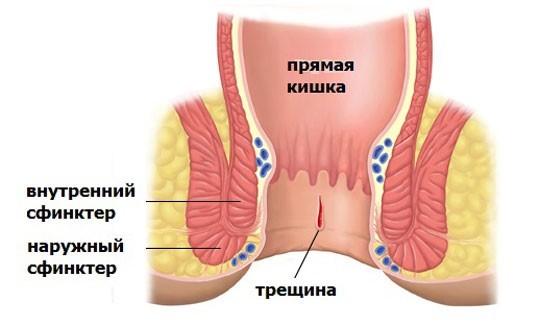 Анальная трещина операция недержание