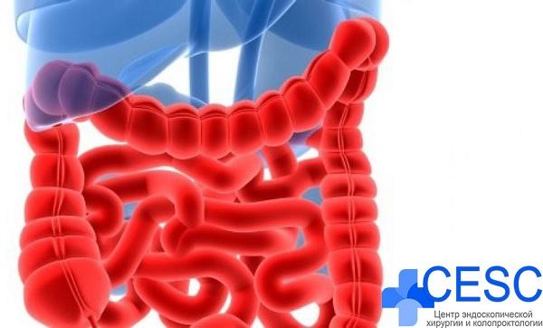 lechenie-bolezni-krona-v-CESC2